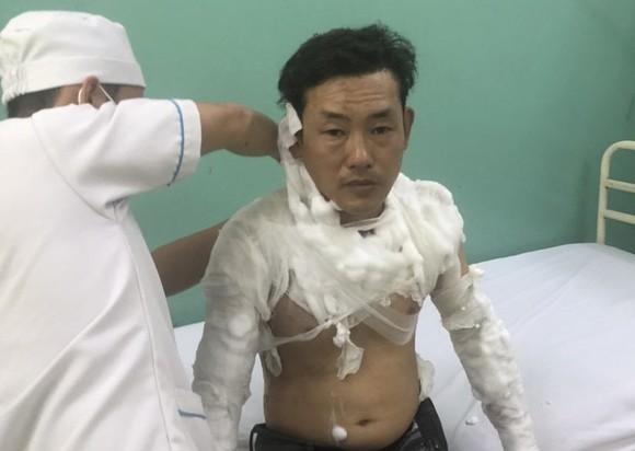 Khởi tố kẻ tẩm xăng doạ đốt, cướp tiền ngân hàng ở quận Bình Tân ảnh 1