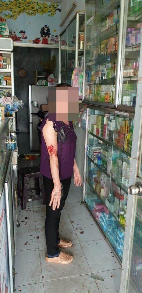 Khởi tố 2 vợ chồng thuê 'giang hồ' tạt chất bẩn, mắm tôm vào tiệm thuốc tây ở quận 8 ảnh 3