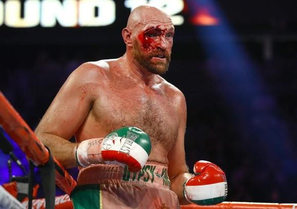 Fury đổ máu trong trận thắng Wallin