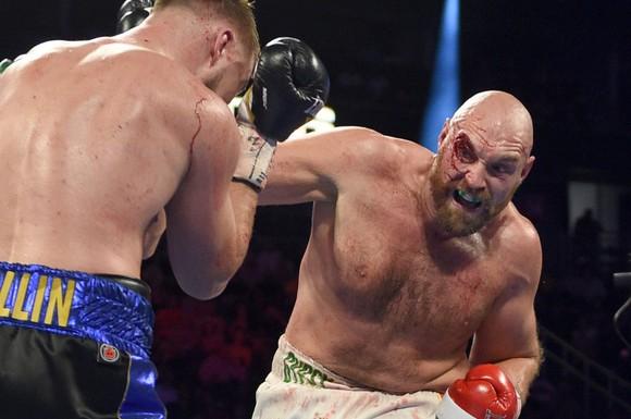 """Quyền Anh: Fury """"giận dữ"""" trả giá cho chiến thắng - rách chân mày, máu chảy đầy mặt phải nhập viện ảnh 3"""