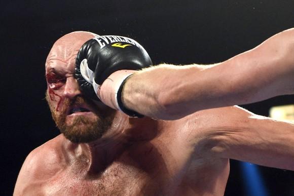 """Quyền Anh: Fury """"giận dữ"""" trả giá cho chiến thắng - rách chân mày, máu chảy đầy mặt phải nhập viện ảnh 4"""