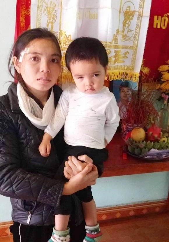 Bé gái 2 tuổi mong được cứu đôi mắt  ảnh 1