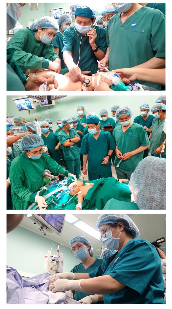 Hành trình của cặp song sinh dính liền hiếm gặp nhất Việt Nam Diệu Nhi - Trúc Nhi ảnh 11