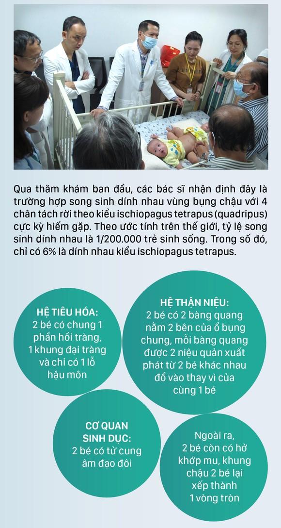 Hành trình của cặp song sinh dính liền hiếm gặp nhất Việt Nam Diệu Nhi - Trúc Nhi ảnh 2
