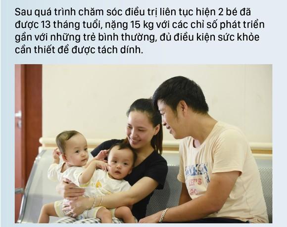 Hành trình của cặp song sinh dính liền hiếm gặp nhất Việt Nam Diệu Nhi - Trúc Nhi ảnh 4