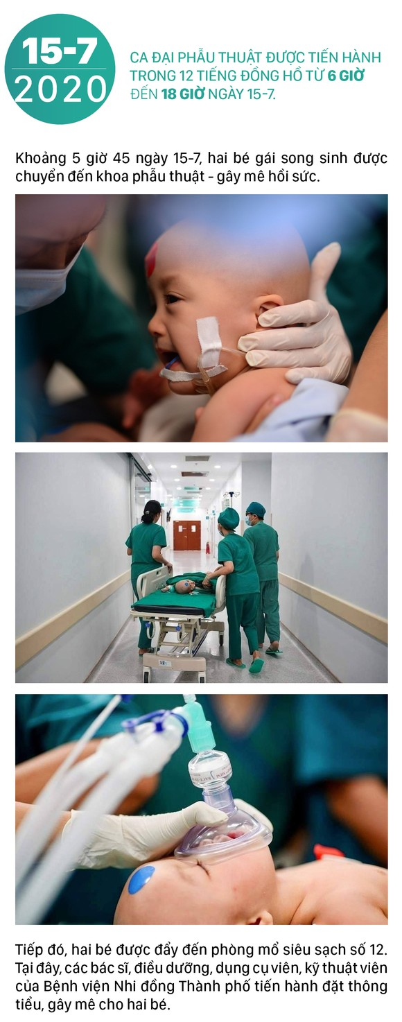 Hành trình của cặp song sinh dính liền hiếm gặp nhất Việt Nam Diệu Nhi - Trúc Nhi ảnh 5
