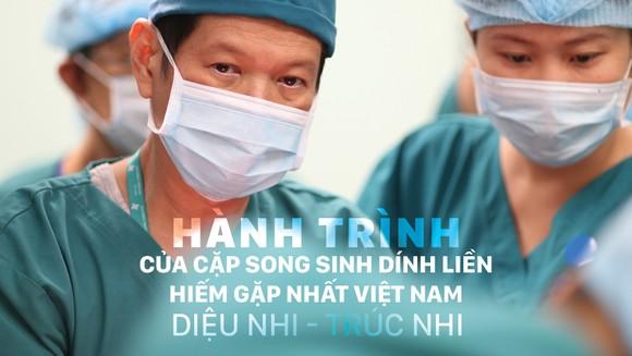 Hành trình của cặp song sinh dính liền hiếm gặp nhất Việt Nam: Diệu Nhi - Trúc Nhi