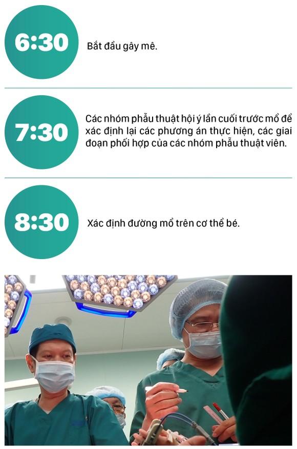 Hành trình của cặp song sinh dính liền hiếm gặp nhất Việt Nam Diệu Nhi - Trúc Nhi ảnh 13