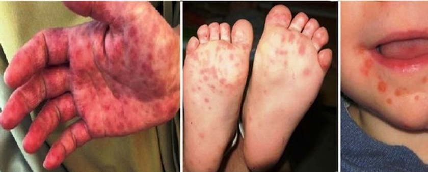 Ministry urges to prevent hand, foot and mouth disease ảnh 1